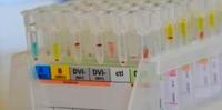 Auch in München mehr Patienten mit Rheuma