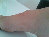 Ganglion (Überbein) am Fußrücken erfolgreich behandelt