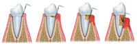 Beovita warnt: Parodontitis - Todfeind für den Körper