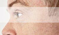 Augenarzt für Neuss informiert über neue Kassenleistung