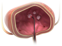 biolitec®: Treatment of bladder tumors now with trans-urethral laser ablation TULA® on an outpatient basis