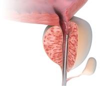 Prostata-Laser-Therapie LIFE: Infektionsarm - Schnell - Schonend - Risikopatienten geeignet
