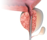 Prostate Laser Therapy LIFE: Low-infection - Fast - Gentle - Suitable for high-risk patients