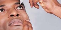 Fragen und Antworten zu Augentropfen bei Allergien