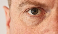 Trockene Augen - Hilfe beim Augenarzt in Neuss