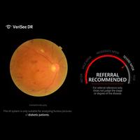 VeriSee DR diagnostiziert diabetische Retinopathie in Sekunden