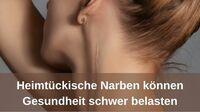Heimtückische Narben können Gesundheit schwer belasten