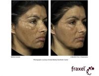 Fraxel-Lasertechnologie rückt sonnengeschädigter Haut auf die Pelle
