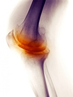 showimage Hyaluronsäure - das körpereigene Gelenkschmiermittel
