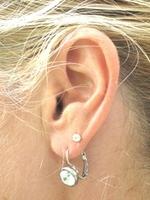 Schlecht Hören und Ohrgeräusche: Wann soll man zum Ohrenarzt?