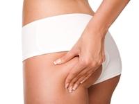 Test und Erfahrungen von Behandlungen gegen Cellulite und Orangenhaut