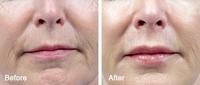 RF-Needeling: Hautverjüngung ohne Nachwehen