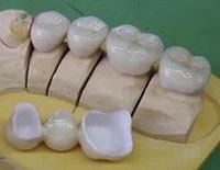 """Pressemitteilung: Krank durch Zahnkronen? – Risiken bei """"Spargold"""""""
