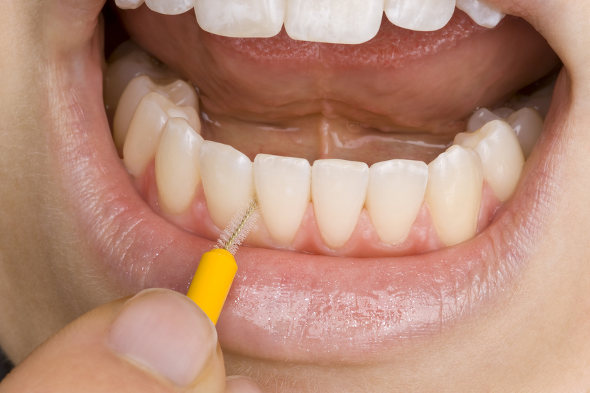 Profi Tipps für die richtige Zahnpflege