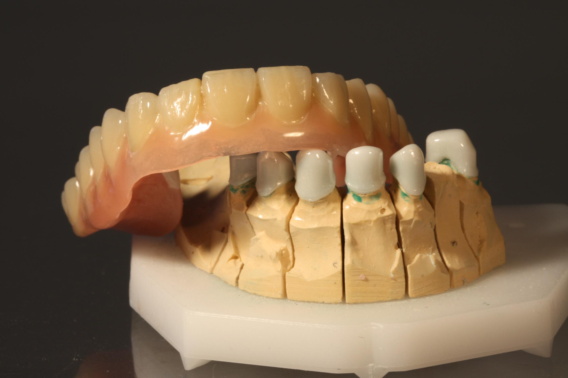 Zahnersatz aus Hochleistungs-Kunststoff - nicht nur eine Alternative f#xFCr Allergiker